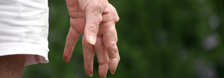 Chiropractic Colorado Springs CO Arthritis